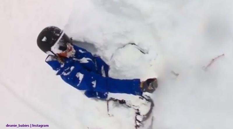 BIP Dean Unglert ski accident