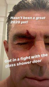 RHOC Jim Edmonds Instagram Screenshot Injury
