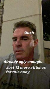 RHOC Jim Edmonds Instagram Screenshot Stitches
