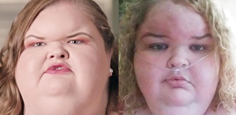 Tammy Slaton weight loss collage