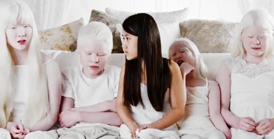 Grabowski Kids, Born with Albinism, Still TLC