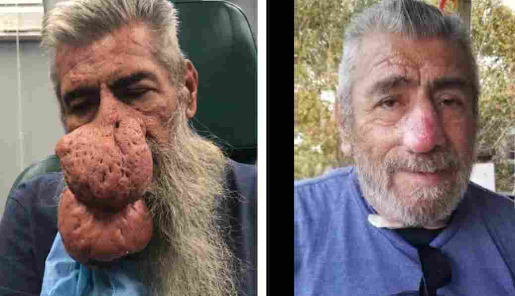 Dr Pimple Popper patient Roger had a rhinophyma removed by Dr. Sandra Lee
